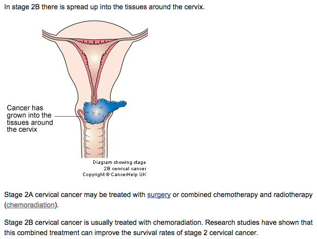 Cervical cancer my story screen shot 2015 08 19 at 42014 pm ccuart Images